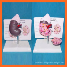 Medical Science Human Healthy Kidney Model